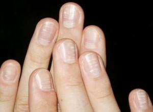 zinc nails